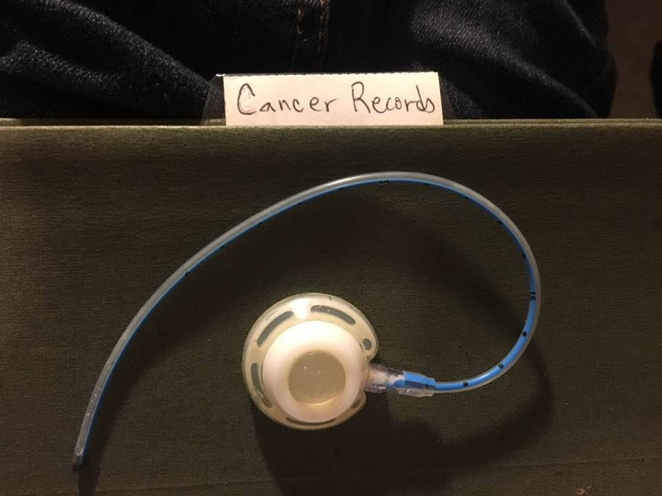 Cancer port